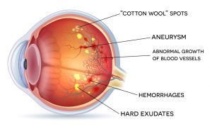 Diabetic-Retinopathy-treatment